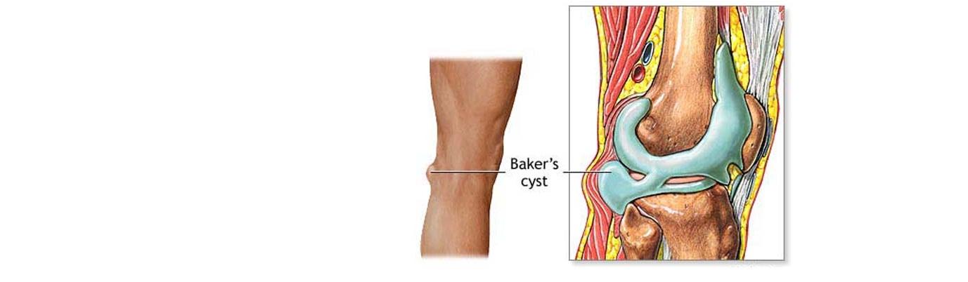 5 причин кисты (опухолей) в коленном суставе какие есть виды и как лечить?