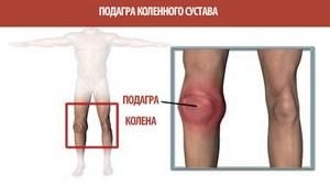 Боли в колене при подагре