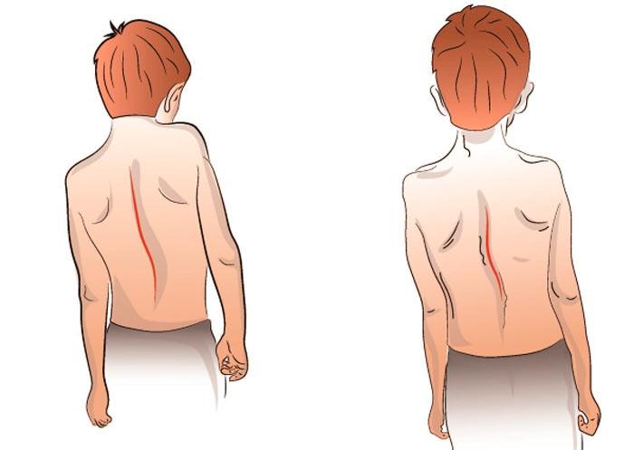 4 степени идиопатического и инфатильного (юношеского) сколиоза