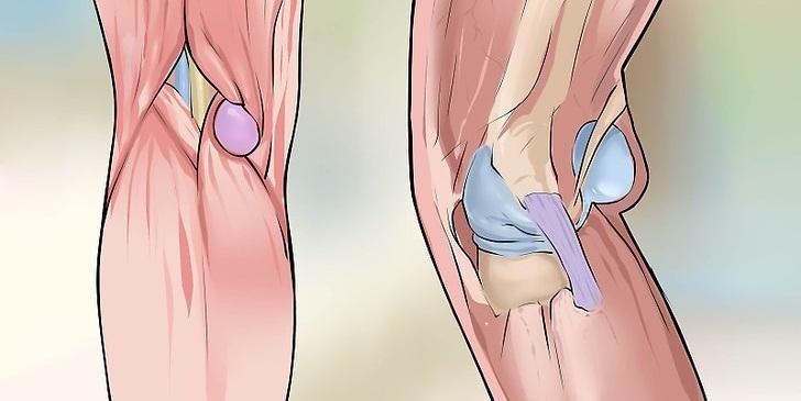 3 причины кисты Бейкера коленного сустава и методы лечения