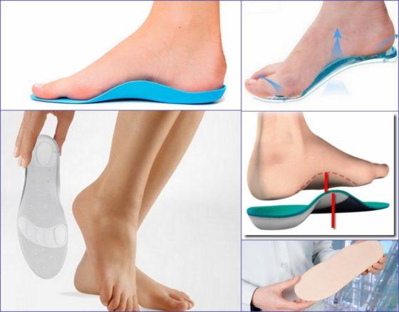 4 вида ортопедических стелек при плоскостопии как выбрать?