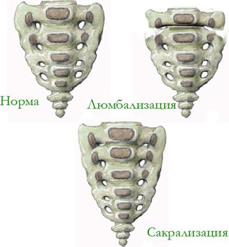Чем опасны аномалии развития позвоночника 6 различных видов и лечение