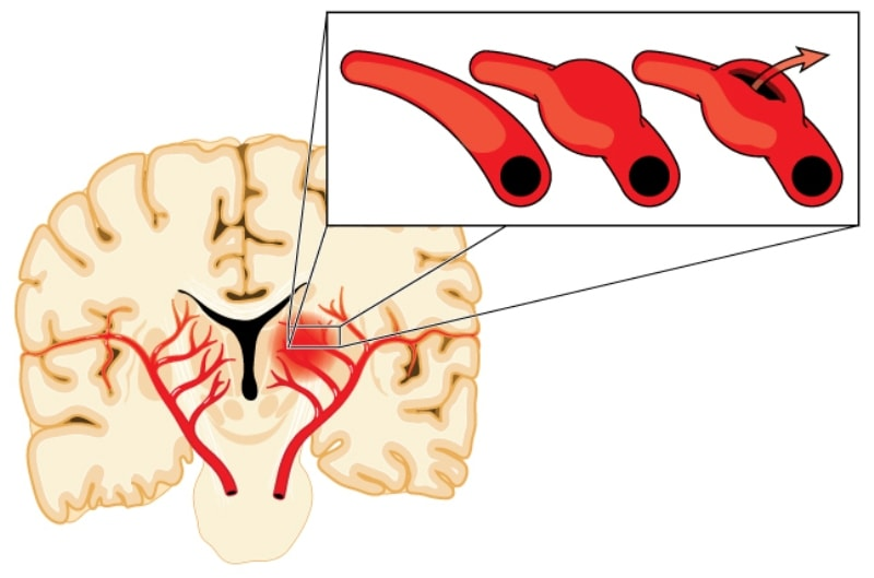Причины боли в затылке головы и что делать для ее устранения