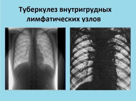 Способны ли семечки повышать или понижать артериальное давление, полезные свойства, противопоказания, состав и методы употребления