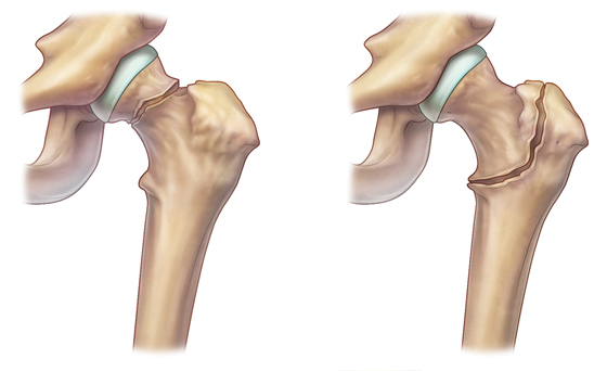 7 симптомов и признаков чрезвертельного перелома бедра