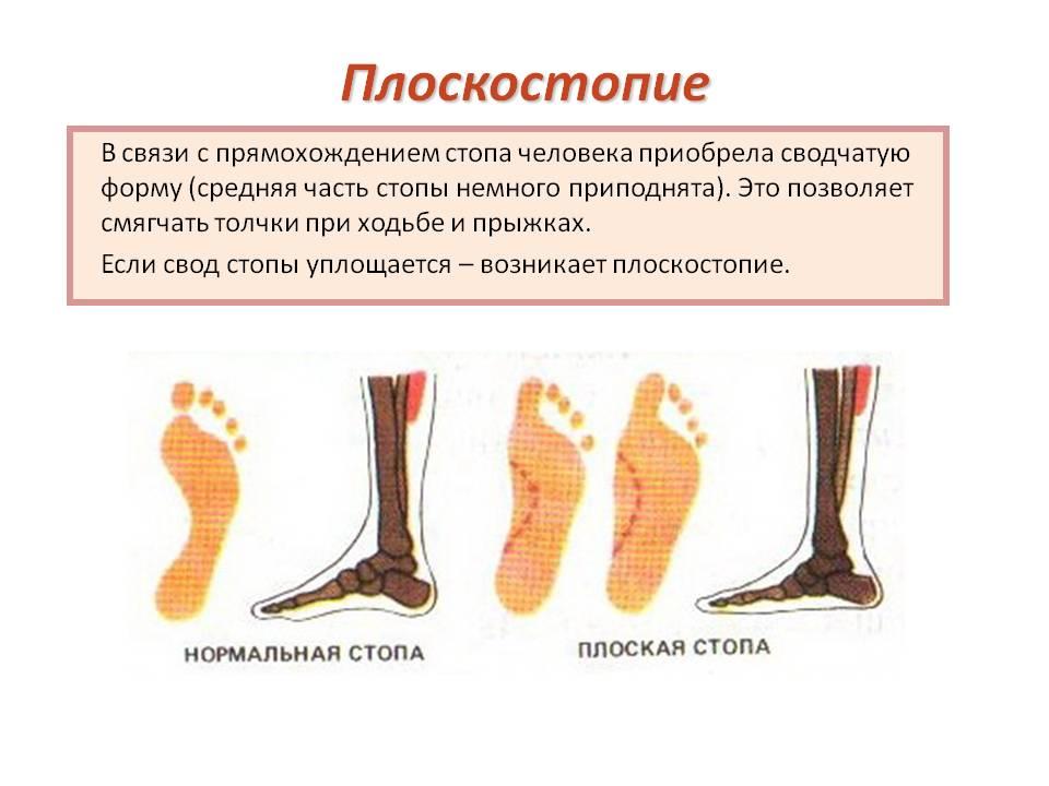 Категория годности при плоскостопии 2 степени симптомы и лечение