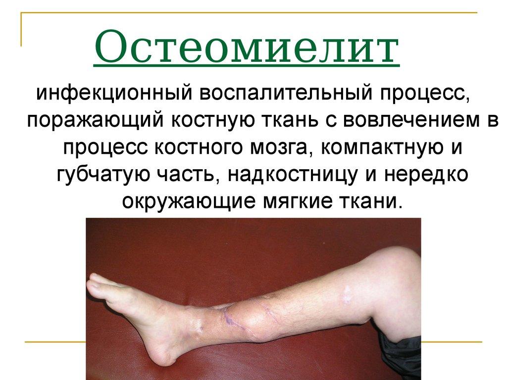 Почему болит тазобедренный сустав при ходьбе? 36 возможных недугов