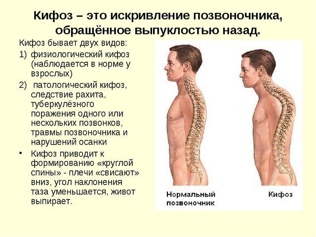 Кифотическая деформация шейного отдела позвоночника (кифоз)