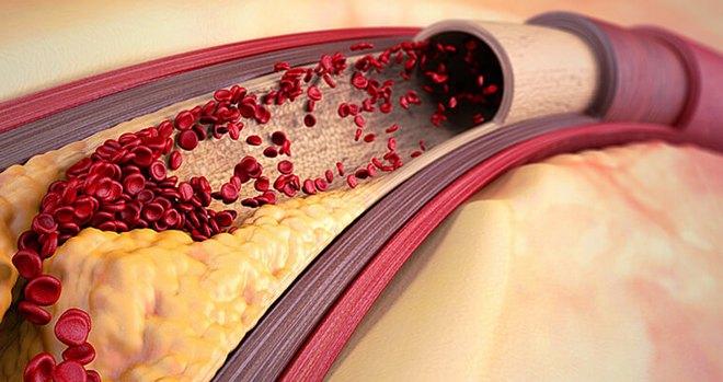 Препарат назначают при артериальной гипертензии.