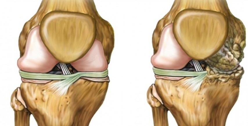 Кому грозит артроз коленного сустава? Предостерегите себя