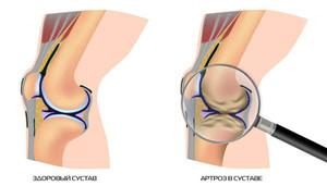 Чем лечить колени