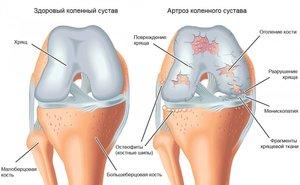 Способы лечения артроза колен