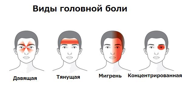 Схема разновидностей головной боли