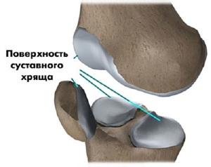 Суставной хрящ колена