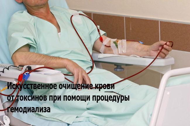 Гемодиализ при болезни почек