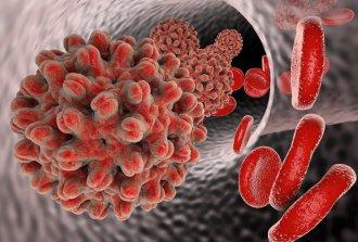 Гепатит В – риск заражения, симптомы и лечение заболевания