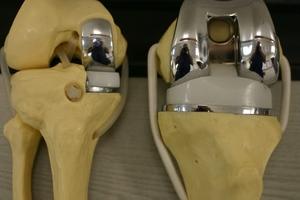 Как протезируют коленный сустав