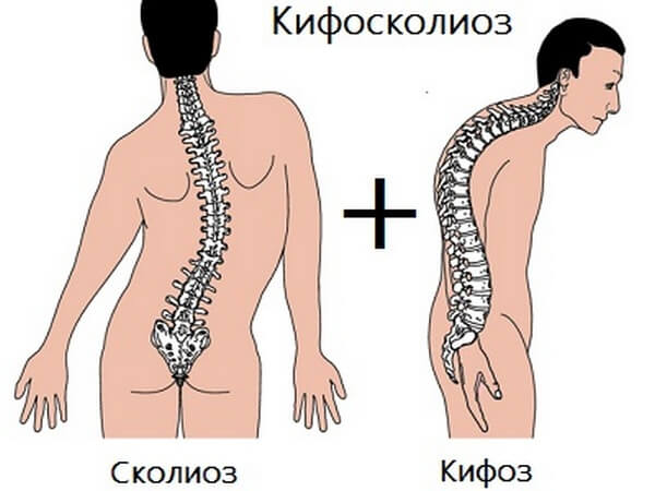 Идиопатический кифосколиоз разных степеней упражнения (лфк) .
