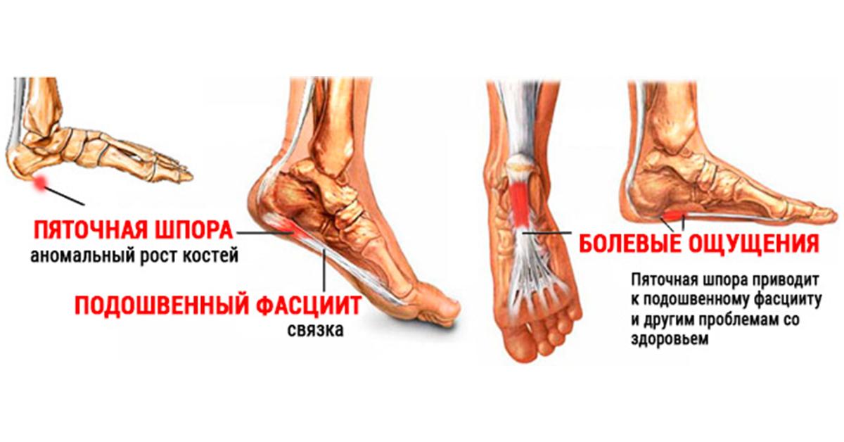 16 причин боли в голени при ходьбе. Оптимальное лечение