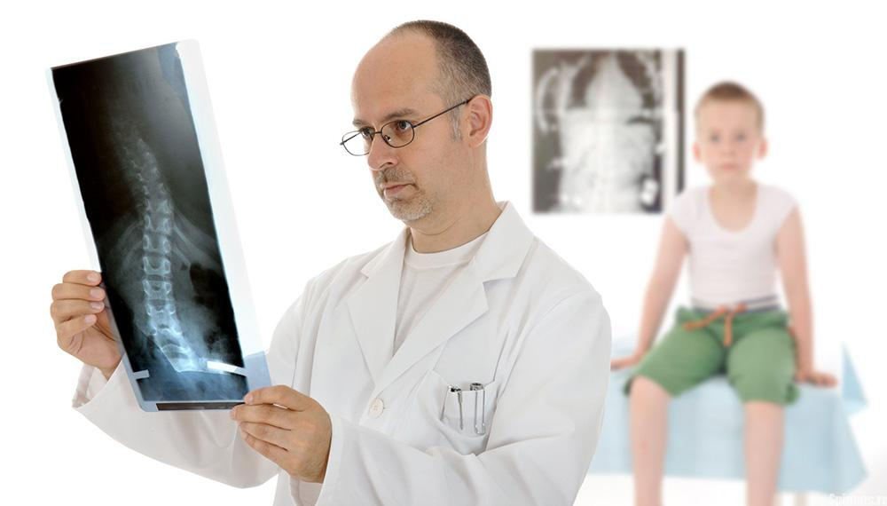 5 врачей, к которым можно обратиться при сколиозе (искривлении позвоночника)