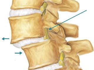 Смещение позвонков в грудном отделе 4 стадии и 17 симптомов