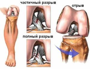 Причины разрыва связок в колене