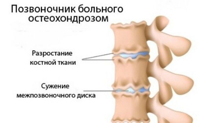 ВСД и шейный остеохондроз в чём связь этих 2-ух недугов?