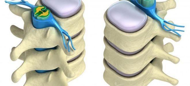 5 способов восстановления хрящевой ткани позвоночника. Как безопаснее?