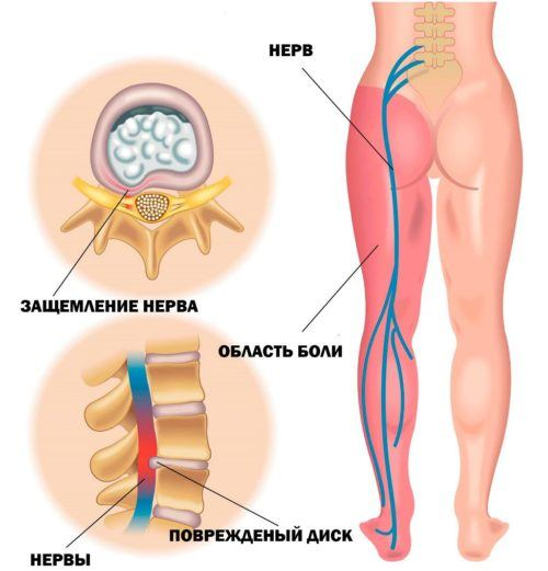 10 причин защемления нерва в пояснице, возможно ваша спина болит именно по этому