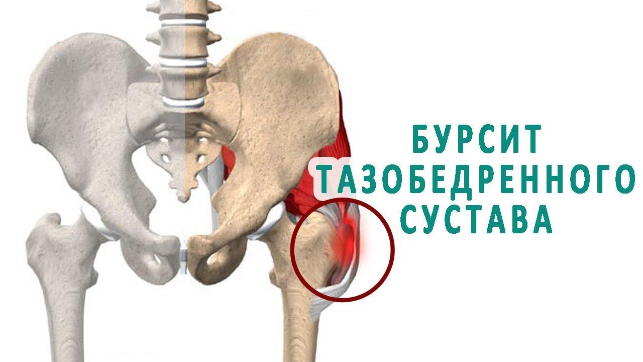 14 распространённых болезней тазобедренного сустава