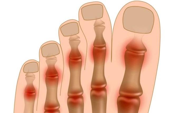 Артрит большого пальца ноги, как лечить косточку на ноге?