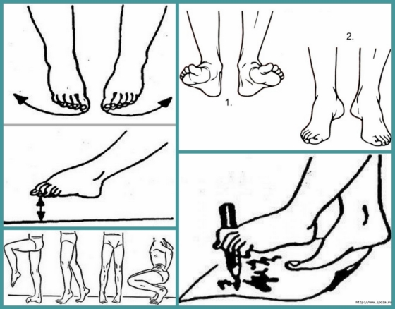 Артроз стопы: лечение в домашних условиях, как не навредить ногам?