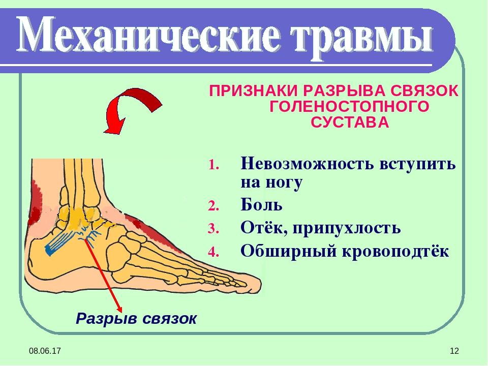 Повреждение голеностопа (голеностопного сустава) частичное и полное.