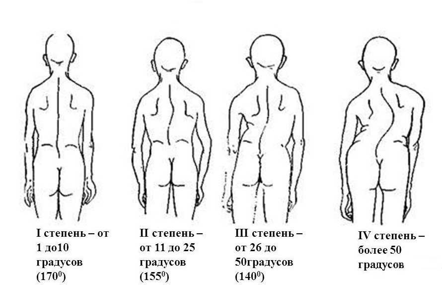 Таблица способов лечения S,Z,C образного сколиоза