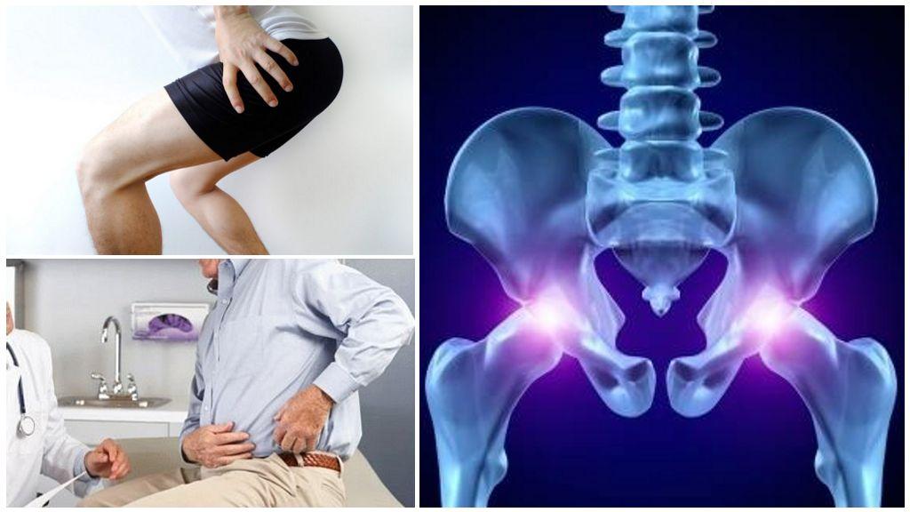 Сосудорасширяющие и обезболивающие при коксартрозе тазобедренного сустава. 11 препаратов