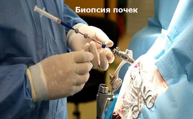 Биопсия почек при нефротическом синдроме
