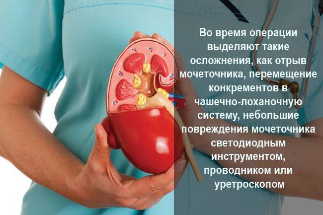 Осложнения во время операции на почках