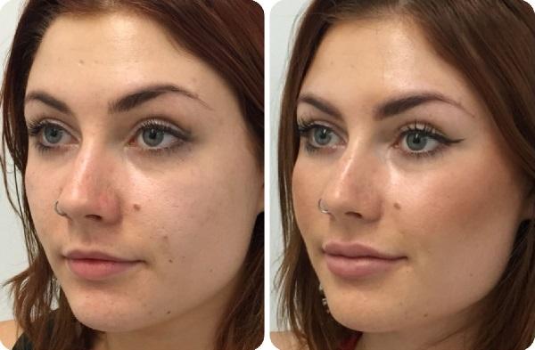 Фото до и после применения филлеров