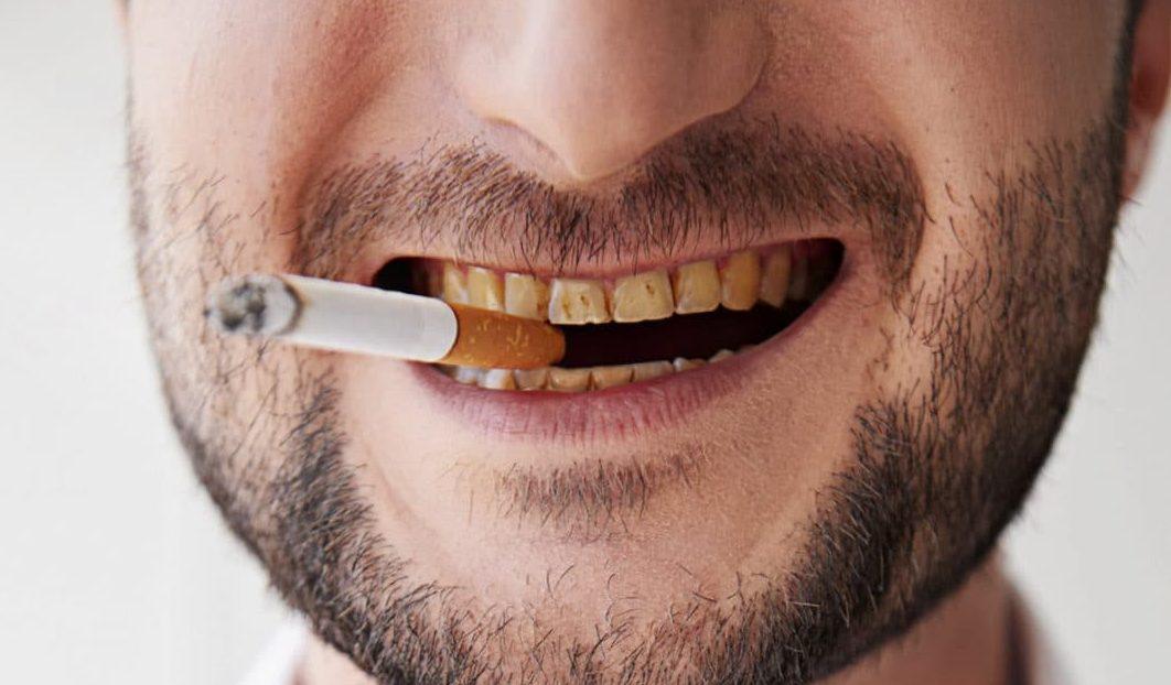 картинки зубы курящих критерий