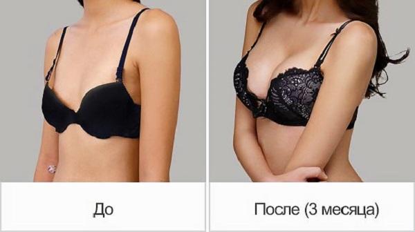 Фото до и после процедуры по увеличению груди