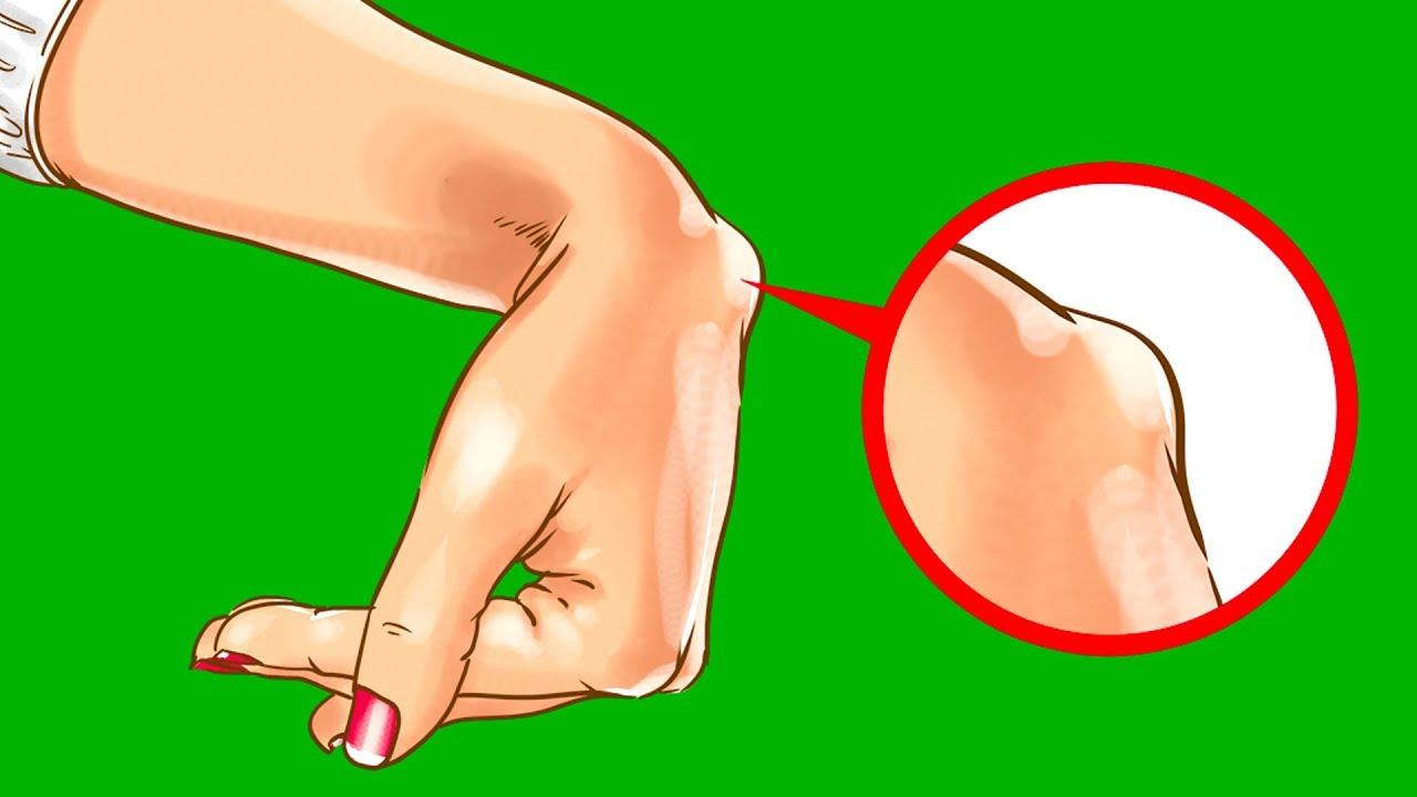 Что такое кистозная гигрома и почему она возникает на шее у плода