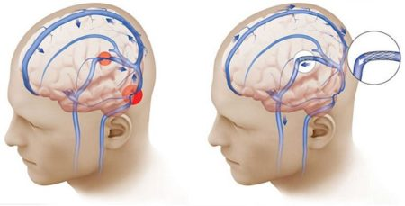 Лечение внутричерепной гипертензии, признаки заболевания, причины возникновения