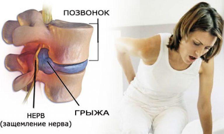 Беременность и межпозвоночная грыжа причины и лечение