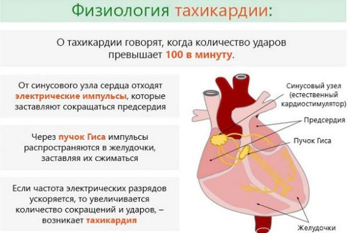 Может ли остеохондроз вызывать тахикардию (аритмию сердца)?