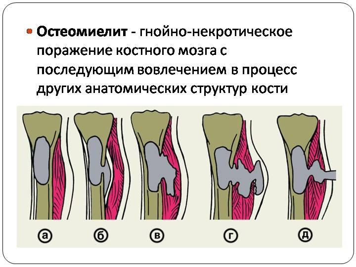 8 причин остеомиелита тазобедренного сустава. Какие последствия?