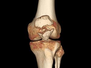 Рентгеновский снимок коленной чашечки