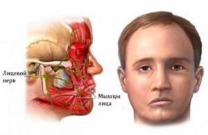 поражение мышц лица