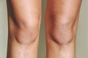 Чешется кожа на ногах зимой: причины