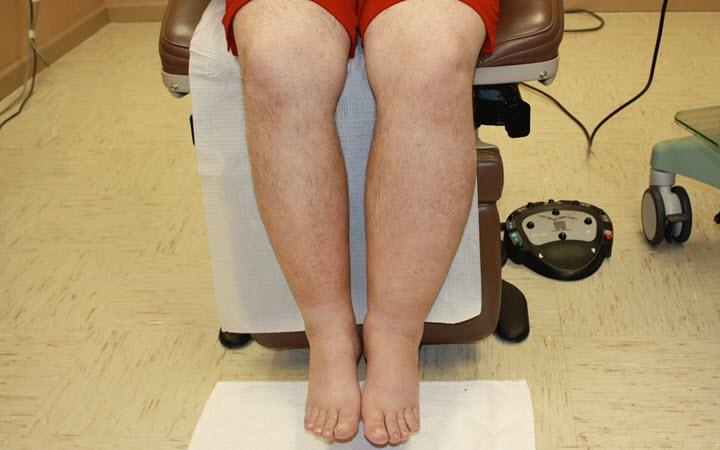 Отек голеней, как лечить и почему отекают?