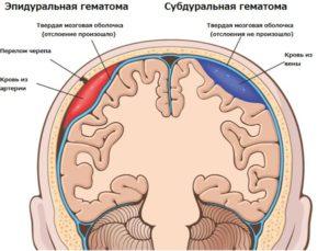 Разлиция между эпидуральной и субдуральной гематомой